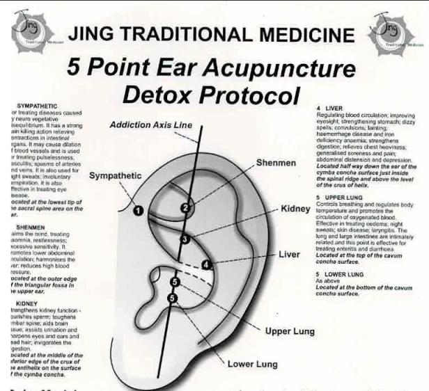 ear-points-jing-traditional.jpeg